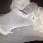 an X-ray of my foot